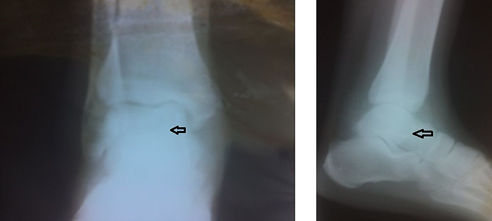 Follow-up-plain-radiographs-of-the-right-ankle's-anteroposterior-and-lateral-views.