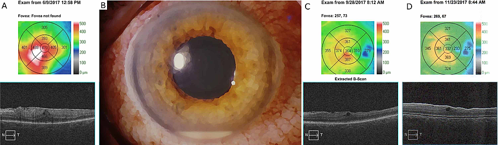 OCT-and-slit-lamp-presentation-of-the-reported-case