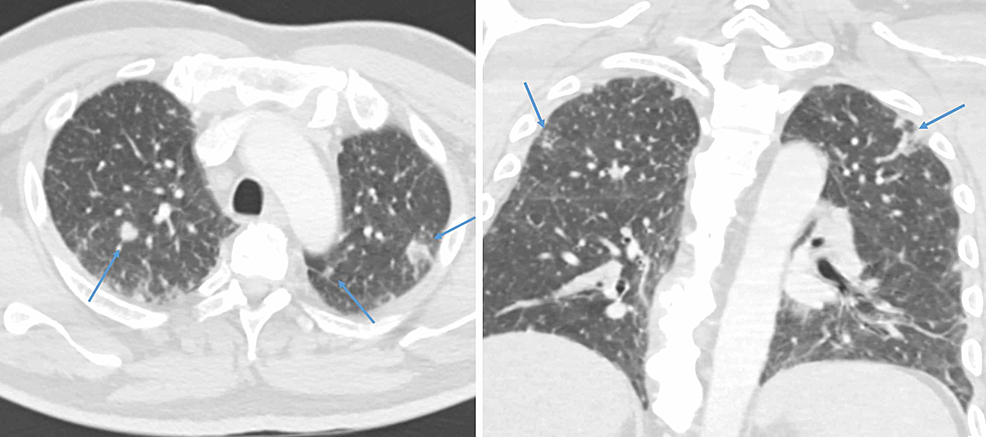 Axial-and-coronal-CT-chest-images-demonstrating-numerous-pulmonary-nodules