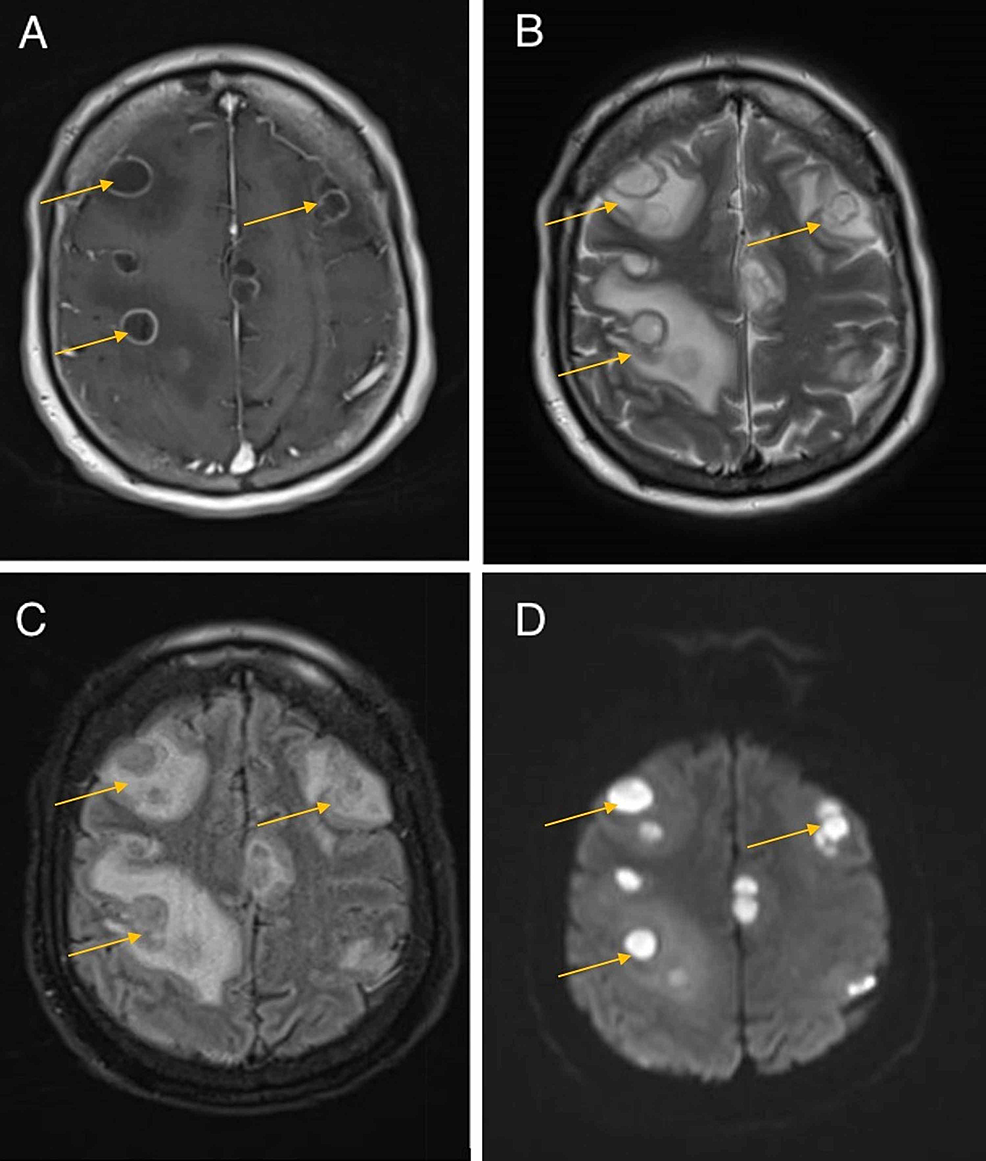 Initial-MR-brain-imaging-of-the-patient-following-new-onset-tonic-clonic-seizure