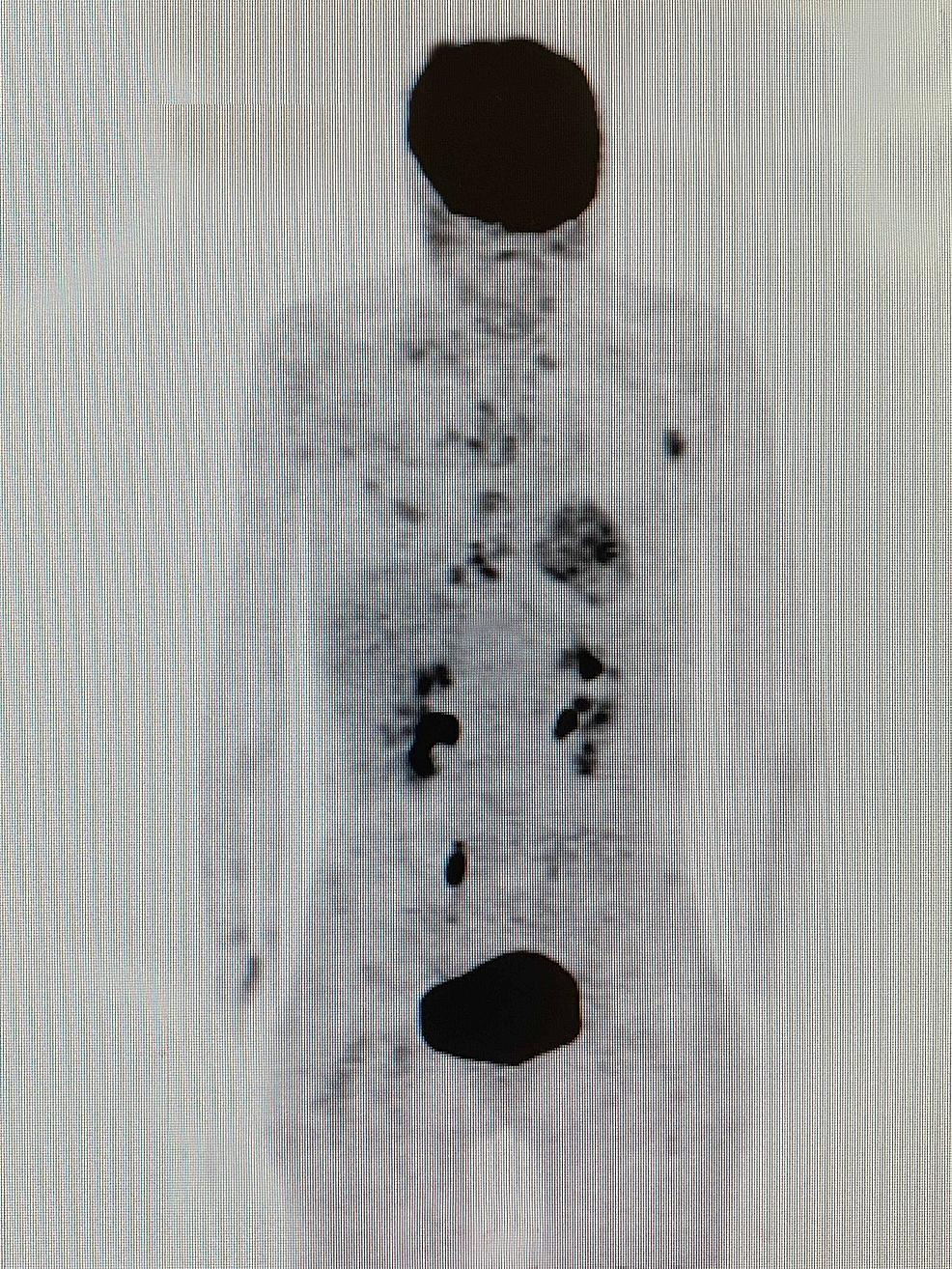 Whole-body- (18F) -FDG-PET-CT-scan-done-done-after-four-cycles-of-MSCT, -KD, -HT, -and-HBOT-treatment- (16 ianuarie -2019) - prezentarea-unui-răspuns-parțial-la-tratamentul-leziunilor-hepatice-metastatice-și-LAP-axilare-stânga-și-răspuns-complet-la-tratament-la-toate-celelalte-leziuni