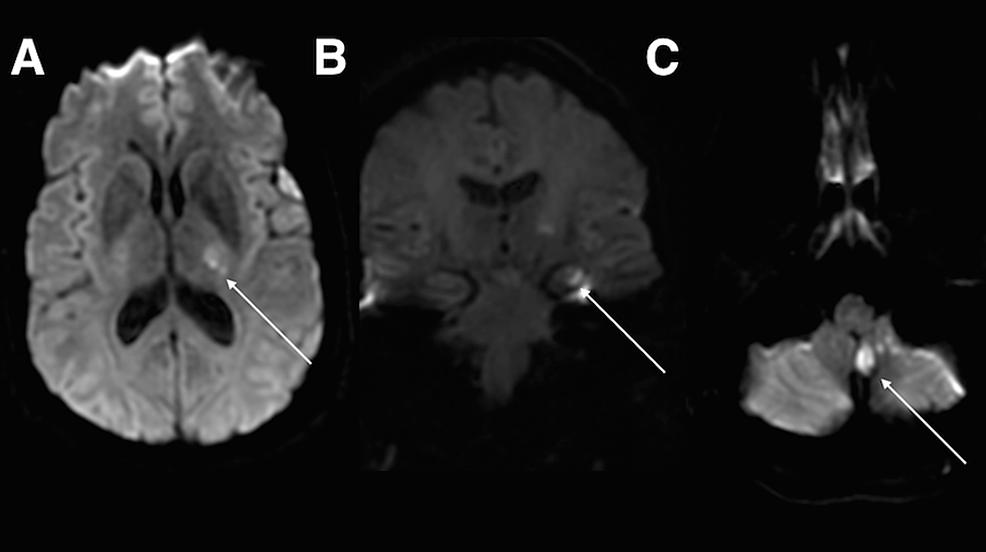 Magnetic-resonance-imaging-(MRI)-demonstrating-acute-infarct.
