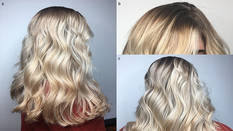 Scalp-hair-appearance-prior-to-bariatric-surgery