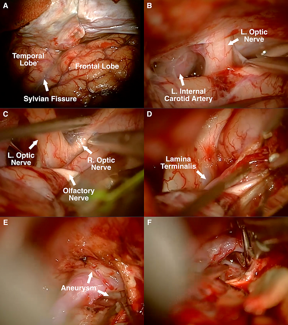 (A)-Left-frontotemporal-(pterional)-approach.-(B)-Subfrontal-approach-to-expose-left-carotid-artery-and-optic-nerve.-(C)-Exposure-of-contralateral-optic-nerve.-(D)-Resection-of-gyrus-rectus.-(E)-Early-exposure-of-aneurysm-neck.-(F)-Placement-of-fenestrated-clip-around-ipsilateral-A2.