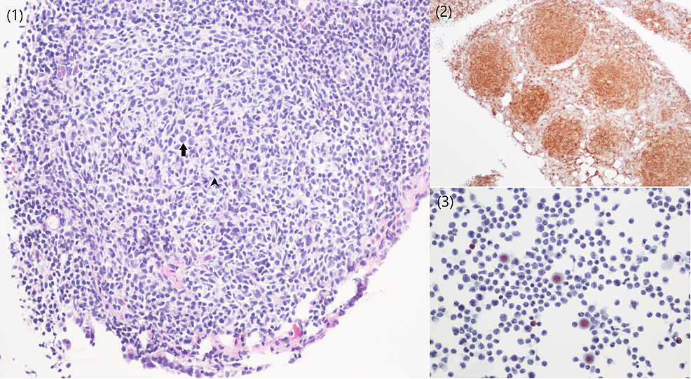(1)-Peritoneal-biopsy-showing-a-closely-packed-neoplastic-follicle.-The-neoplastic-follicle-is-composed-of-large-centroblasts-(arrow)-surrounded-by-a-variable-number-of-centrocytes-(arrowhead).-(2)-CD10-immunostaining-is-strongly-immunoreactive-in-neoplastic-follicles.-(3)-Pleural-fluid-with-lymphomatous-infiltrate.