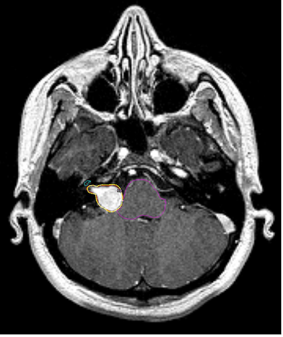 Radiosurgery-planning-in-a-case-of-vestibular-schwannoma