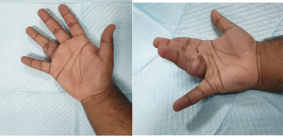 Pre-operative-image-of-the-hand-showing-an-obvious-tumor-in-the-right-ring-finger.