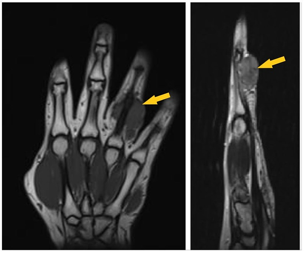 MRI-(left:-axial-cut-section;-right:-sagittal-section)-showing-tumor-in-the-right-fourth-finger-with-compression-of-the-ulnar-neurovascular-bundle-(yellow-arrow).