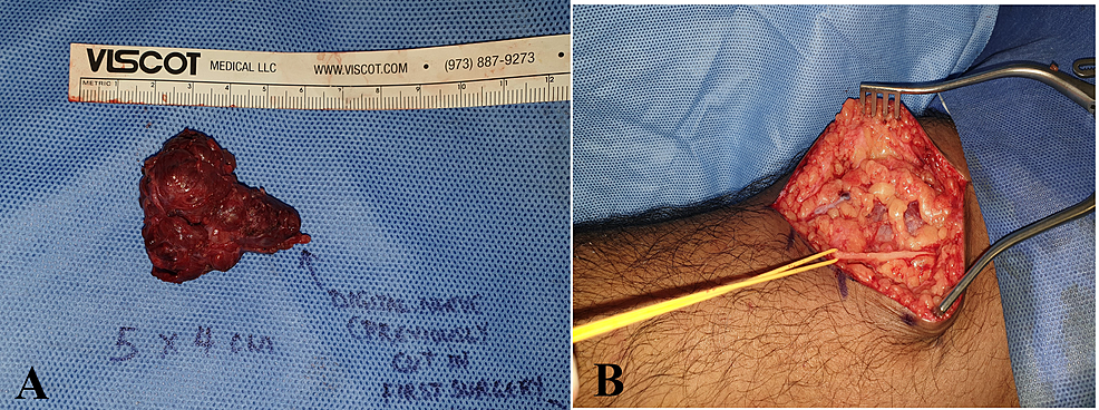 The-tumor-was-excised-completely.-(B)-Harvest-of-the-nerve-graft-from-the-ipsilateral-proximal-forearm-–-lateral-antebrachial-cutaneous-nerve-(yellow-loop).