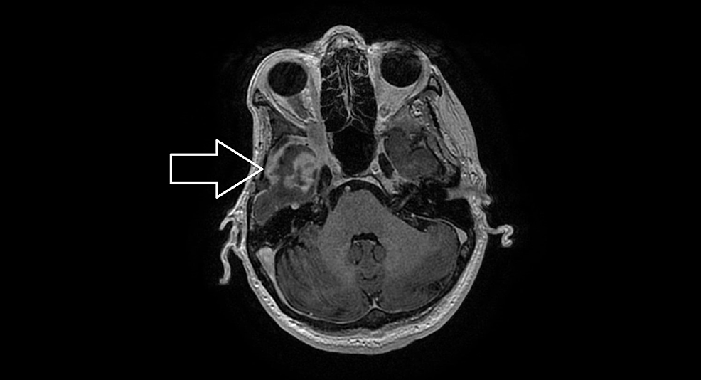 The-magnetic-resonance-imaging-of-the-orbital-metastases-causing-compressive-neuropathy.
