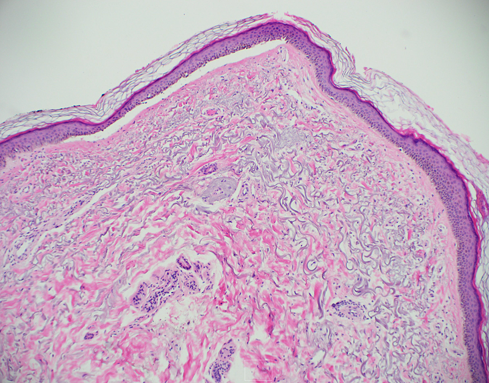 Biopsy-showing-thick-homogeneous-deposition-of-IgG,-IgA,-and-fibrinogen-within-the-walls-of-superficial-dermal-vessels.