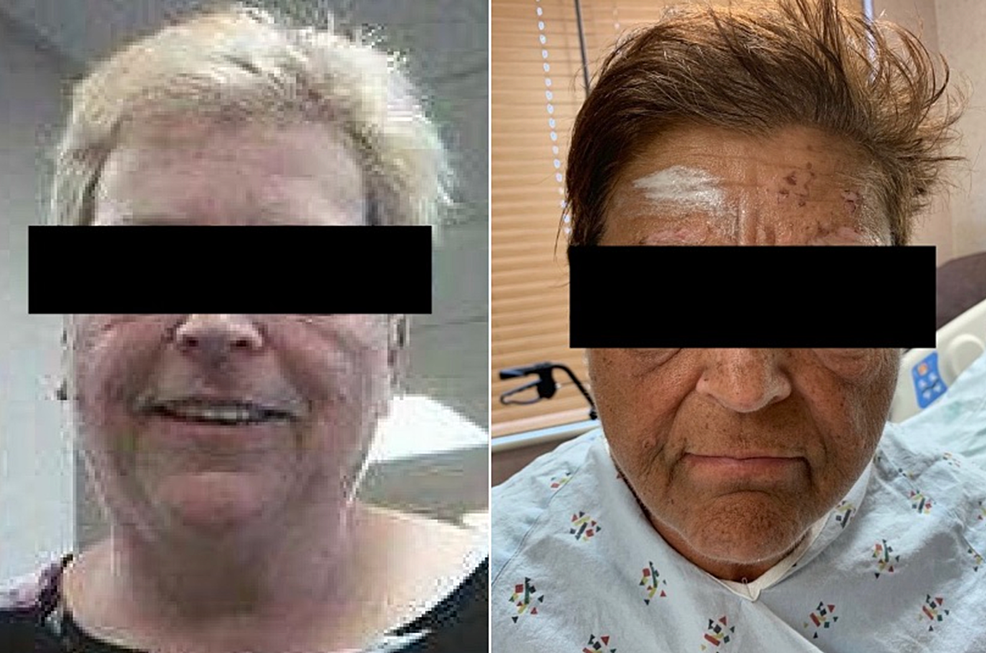Image-from-the-patient's-chart-(left)-compared-to-an-image-of-the-patient-at-presentation-(right)-demonstrating-new-darkening-of-pigmentation.