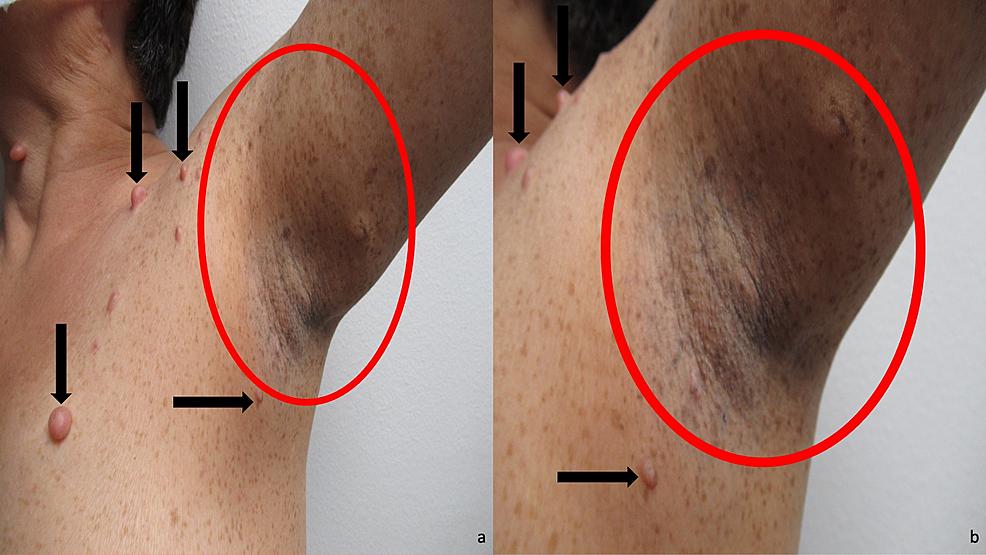 Dermatologic-manifestations-of-neurofibromatosis-type-1