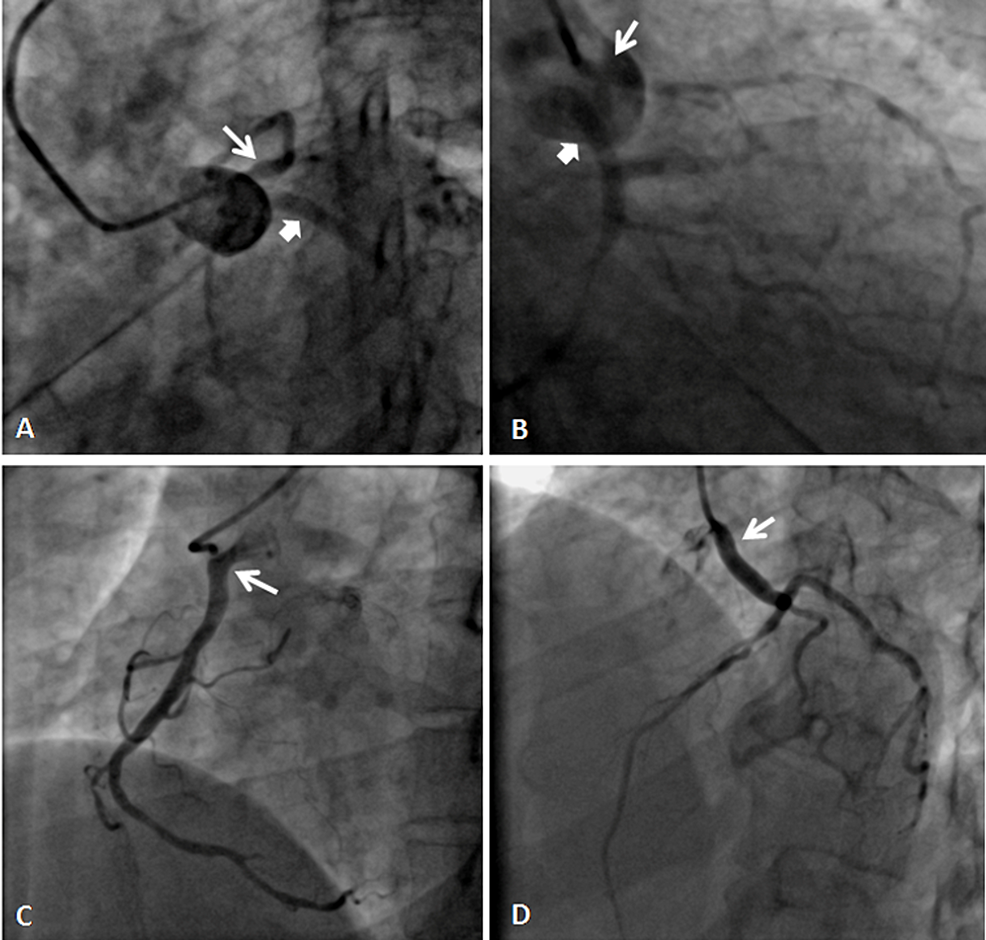 (A)-and-(B)-coronary-angiograms-showing-the-separate-origin-of-LAD-and-LCx-from-the-left-sinus,-and-(C)-and-(D)-show-the-origin-of-RCA-and-LMCA-from-ascending-aorta,-respectively.
