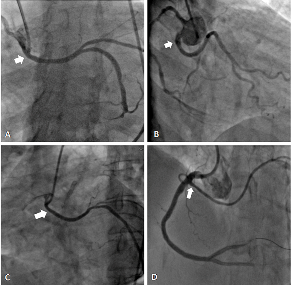 Coronary-angiograms-showing-LCx-arising-from-the-right-sinus-(A-C),-and-from-the-right-coronary-artery-(D).