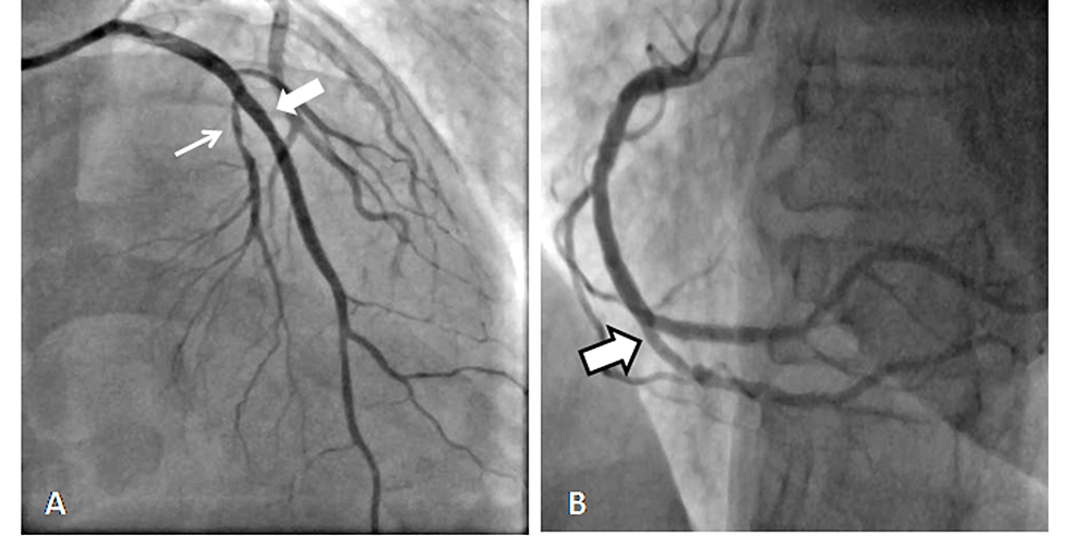 (A)-Coronary-angiogram-showing-dual-left-anterior-descending-and-(B)-showing-split-right-coronary-artery.