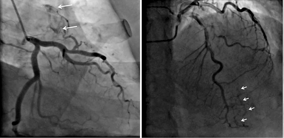 Coronary-angiogram-in-RAO-caudal-projection-showing-the-fistula-from-a-small-branch-of-diagonal-(D1)-and-to-left-pulmonary-artery-(A).-(B)-AP-cranial-projection-showing-multiple-fistulae-from-distal-LAD,-with-termination-into-the-right-ventricle.