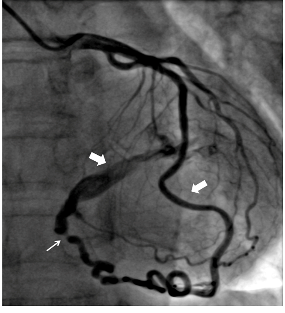 Coronary-angiogram-showing-anomalous-anastomotic-channel-arising-from-distal-LAD-and-draining-into-left-atria-with-a-stenotic-segment-just-before-termination-(white-arrow).