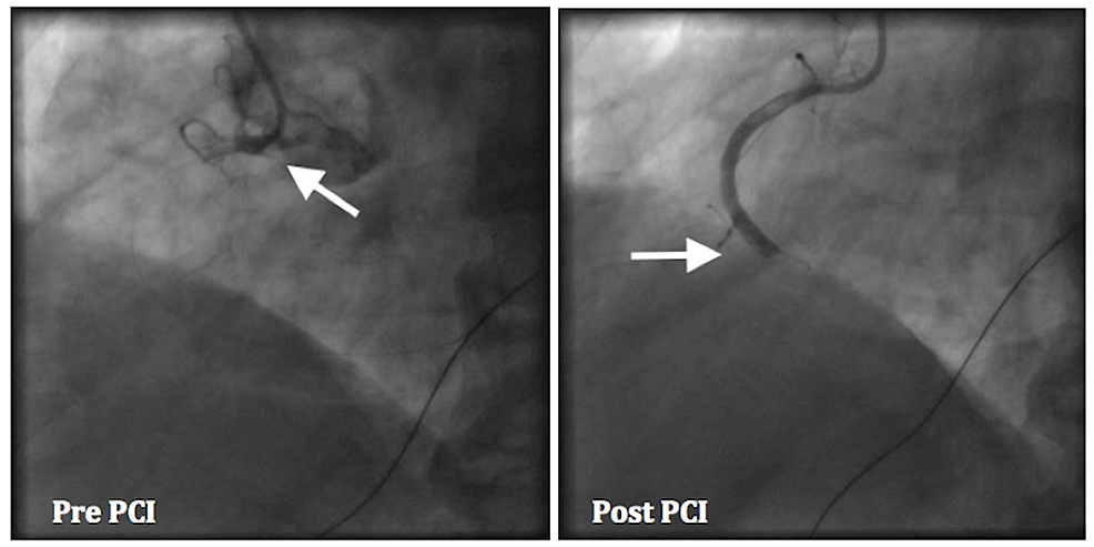 Cardiac-catheterization---right-coronary-artery-has-total-occlusion-(arrow).-After-an-intervention-with-a-bare-metal-stent,-the-right-coronary-artery-is-still-occluded-(arrow).