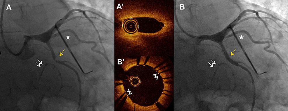 Iatrogenic-circumflex-stenosis-adjacent-to-the-mitral-ring