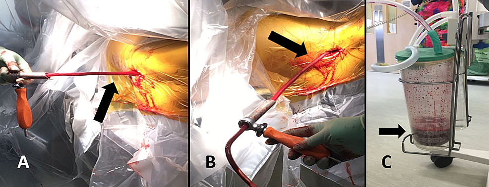 A)-and-B)-The-intraoperative-setup.-C)-The-suction-container.