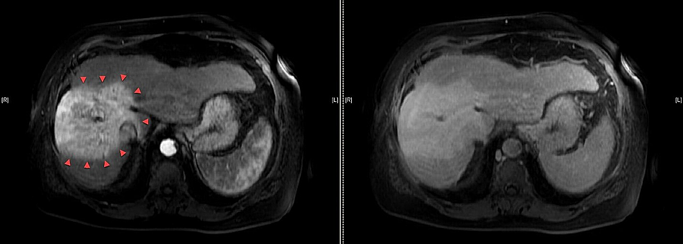 Post-radiation-diagnostic-magnetic-resonance-imaging-(MRI)-of-the-abdominal-scan.