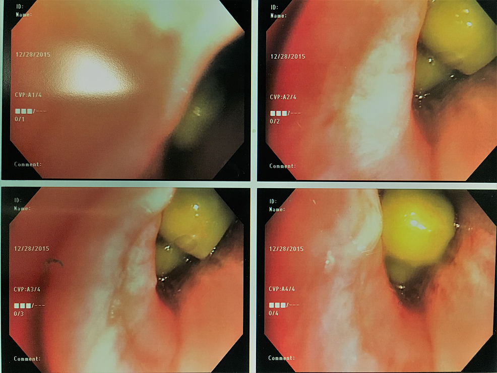 Bronchoscopic-view-of-right-upper-lobe-bronchus-showing-foreign-bodies-(green-peas)