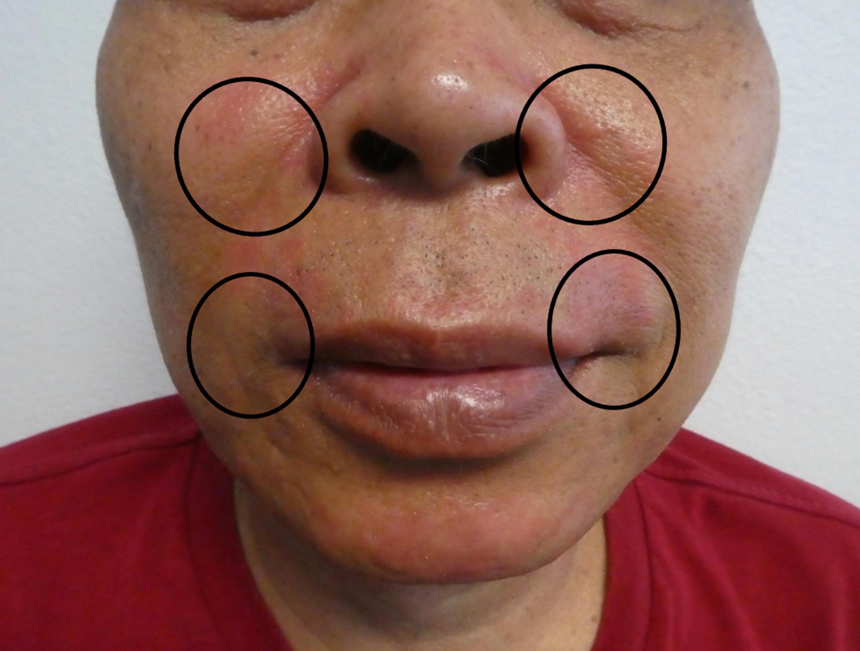 Steroid cream for perioral dermatitis bulk balkan pharmaceuticals moldova