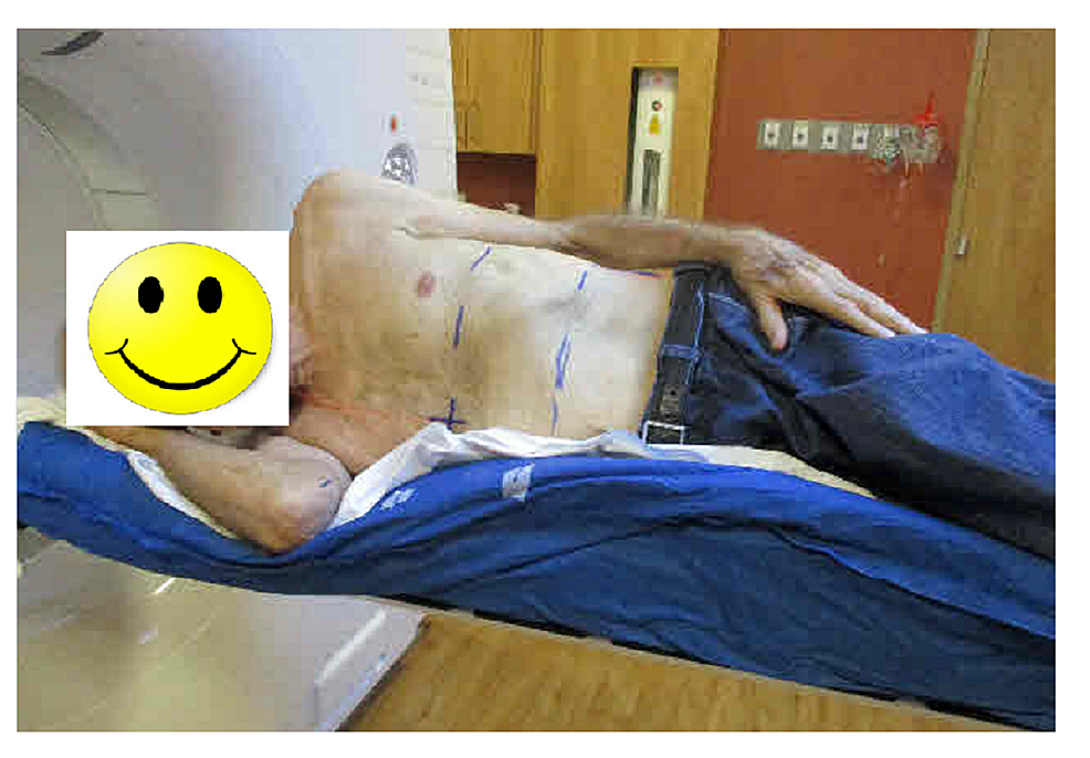 A-patient-was-simulated-in-a-right-lateral-decubitus-position.-A-whole-body-Vac-Lok-was-used-for-immobilization.
