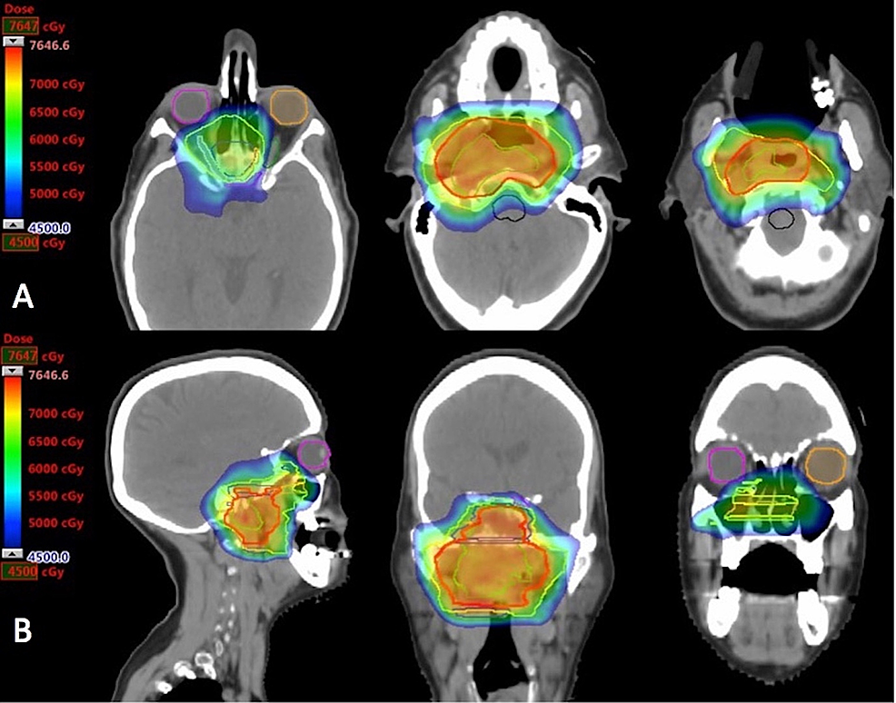 Intensity-modulated-proton-therapy-plan