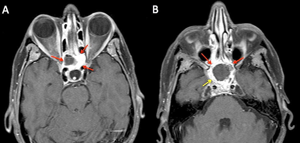 Representative-axial-slices-of-post-treatment-MRI-obtained-at-four-months-after-completion-of-treatment