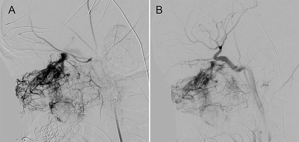 Transarterial-embolization-of-Fisch-grade-IVa-juvenile-nasopharyngeal-angiofibroma