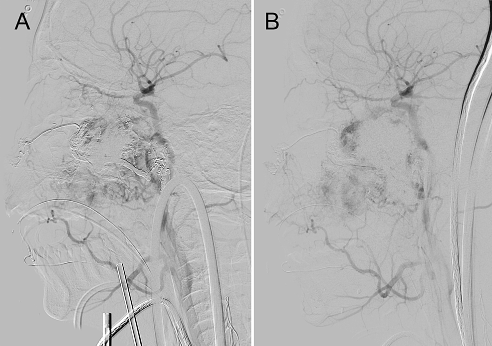 Direct-transnasal-puncture-embolization-of-Fisch-grade-IVa-juvenile-nasopharyngeal-angiofibroma-of-left-nasal-cavity