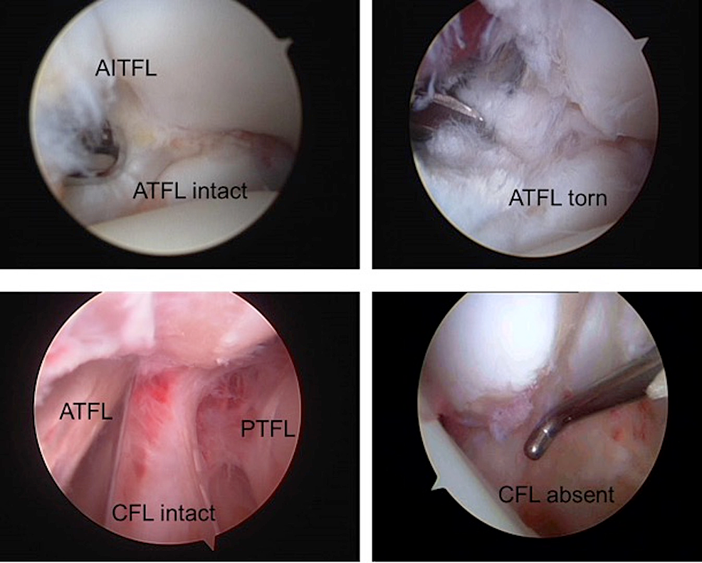 Arthroscopic-view-of-the-lateral-aspect-of-the-ankle.