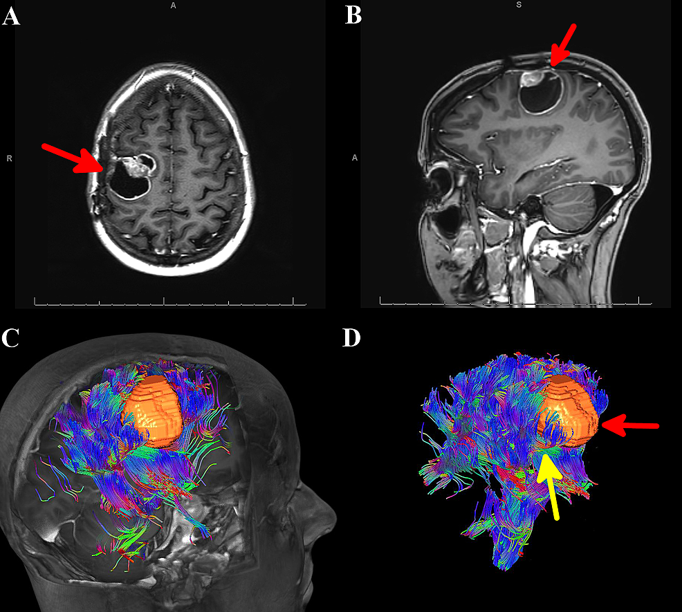 MRI-of-the-brain-and-automated-whole-brain-tractography-(AWBT)-for-Case-1