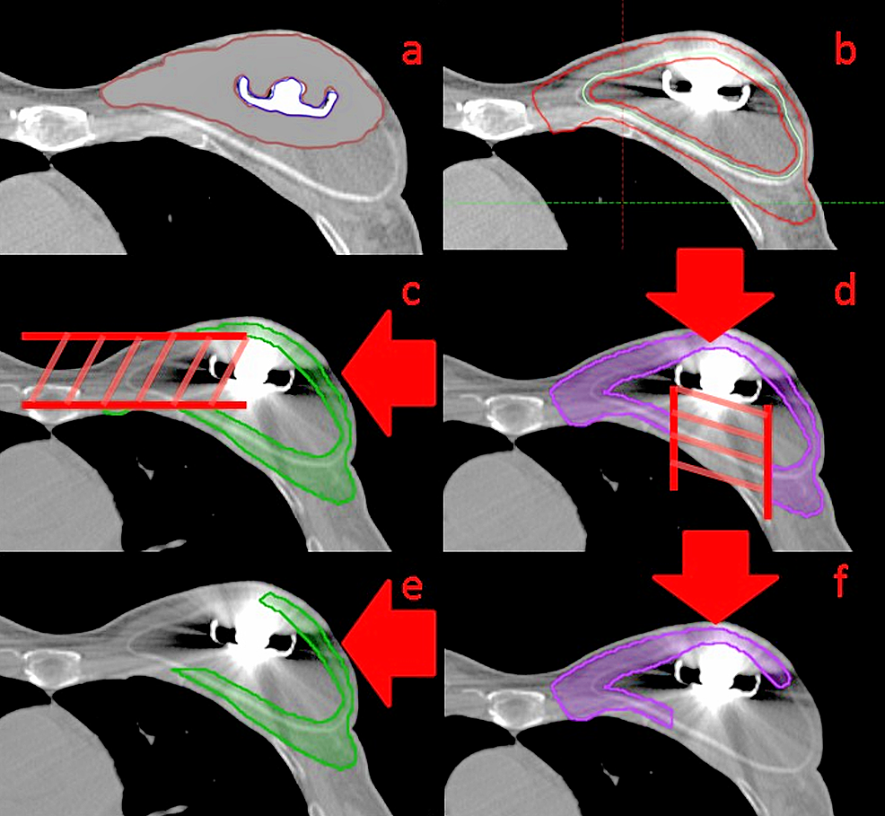 (a)-The-artifact-override-structure-to-account-for-CT-artifact-caused-by-the-metal.-(b)-The-contour-of-the-implant-(blue)-and-of-the-optimization-target-(red)-which-excludes-all-but-a-0.3-cm-rind-of-the-implant.-This-is-the-target-which-is-used-in-the-optimization-to-apply-prescription-coverage.-The-field-specific-targets-for-the-lateral-(c)-and-anterior-(d)-beams-after-excluding-the-section-of-the-optimization-target-that-is-distal-to-the-metal-port-with-respect-to-the-beam-direction-(indicated-with-red-arrow).-After-defining-a-3-cm-overlap-region-through-the-center-of-the-target-where-both-beams-will-contribute-dose,-the-final-field-specific-targets-for-planning-for-the-lateral-(e)-and-the-anterior-(f)-beams-are-generated-by-excluding-the-section-of-the-target-beyond-the-overlap-region-with-respect-to-the-beam-angle-(field-direction-indicated-with-red-arrow).-