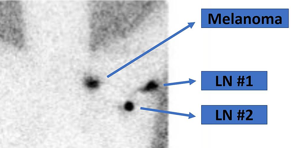 Preoperative-lymphoscintigram-