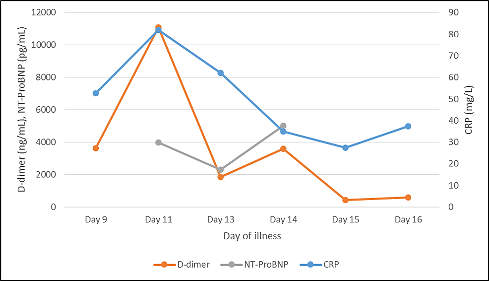 Graphical-representation-of-CRP,-D-dimer,-and-NT-proBNP-values-during-the-course-of-illness-(after-admission).