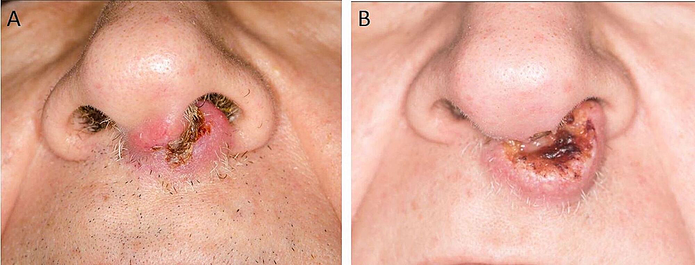 Clinical-photographs-showing-progression-of-the-nasal-mass-within-a-week-before-therapy.