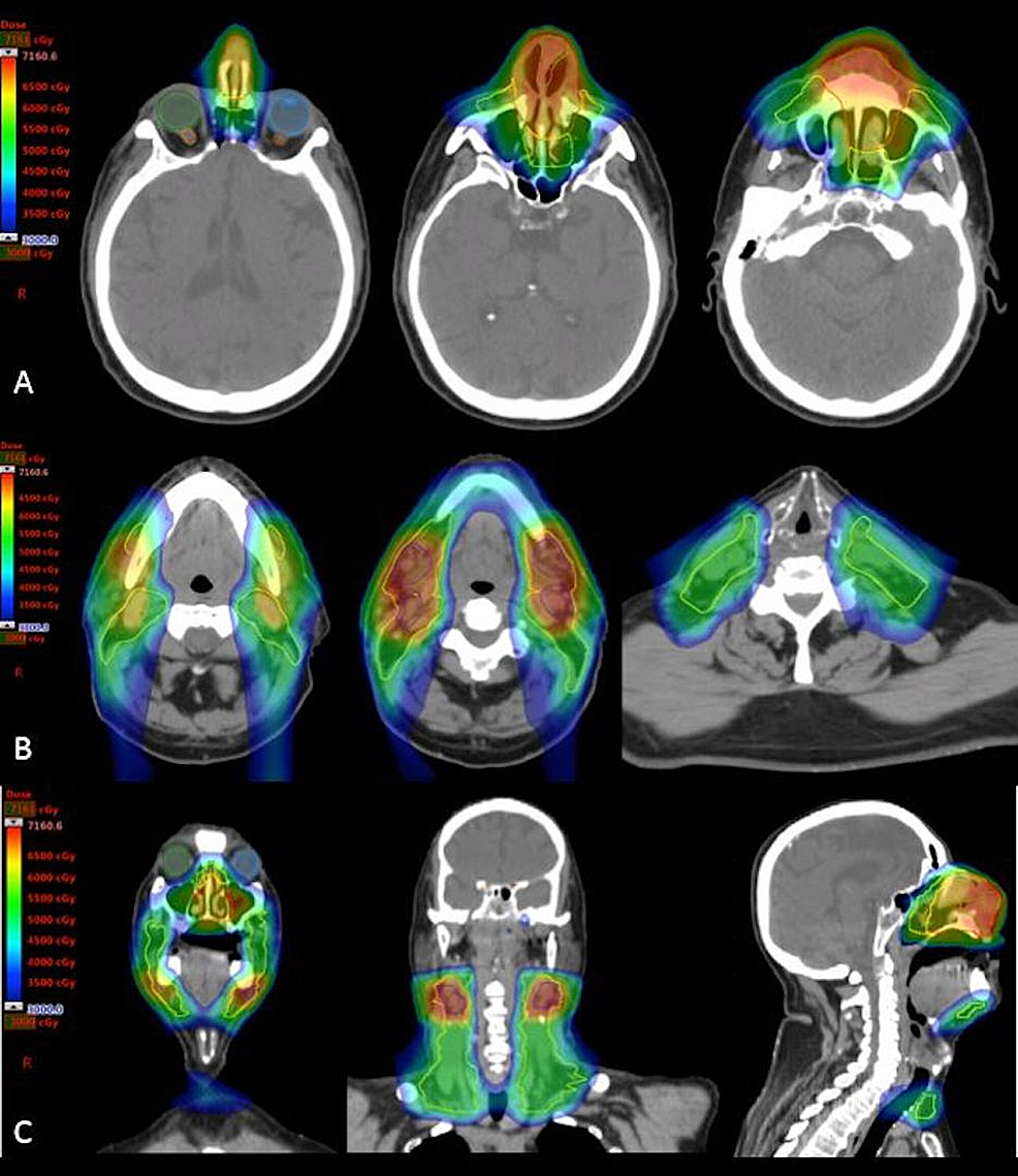 Representative-images-depicting-overall-combined-dose-distribution-of-the-entire-radiation-treatment-course.-Note-sparing-of-the-optic-apparatus,-critical-neural-structures-(optic-nerves,-brain,-spinal-cord)-and-oral-cavity-with-IMPT-with-these-structures-receiving-less-than-30-Gy.