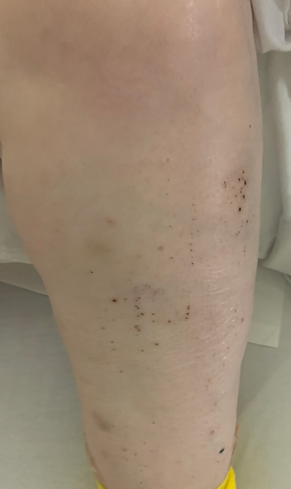 Petechiae-located-in-the-left-lower-extremity