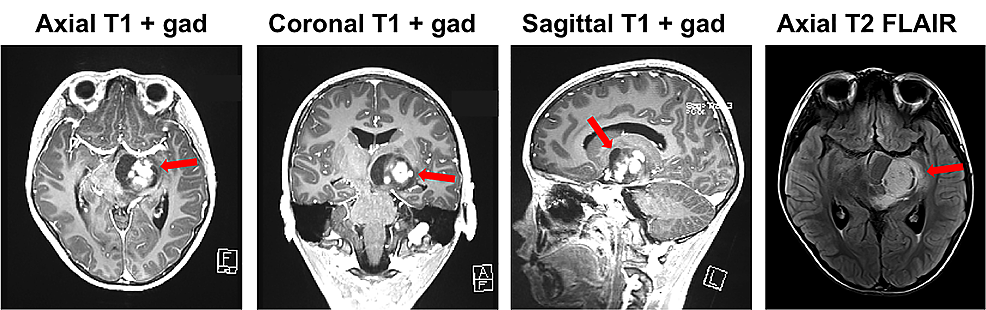 Preoperative-magnetic-resonance-imaging-(MRI).