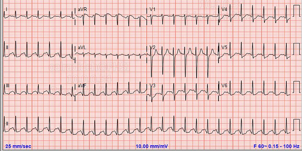 Initial-ECG-showed-normal-QT-interval