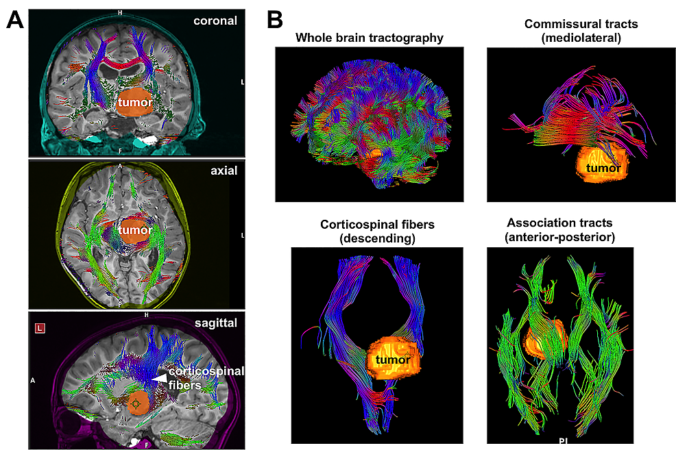 The-spatial-relationship-of-the-tumor-to-white-matter-tracts.