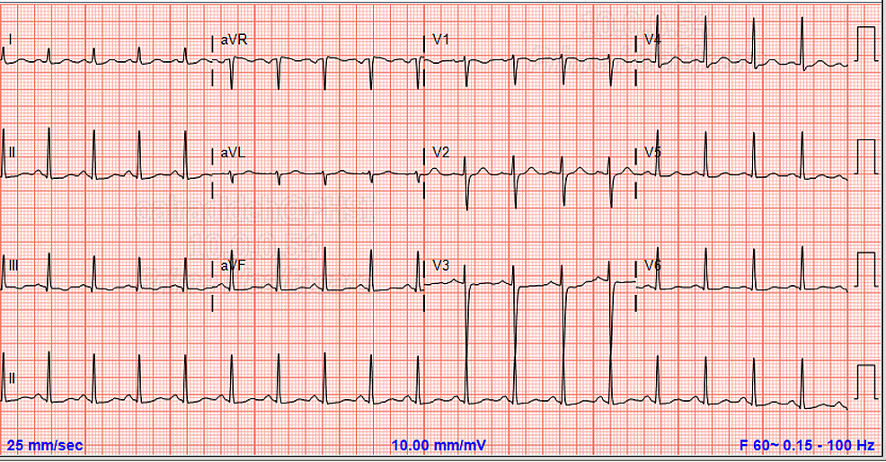 Repeat-ECG-showed-prolonged-corrected-QT-interval-of->540-with-normal-PR-interval-and-QRS-complexes