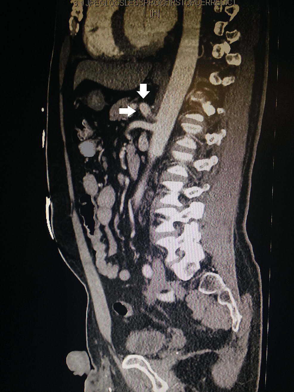 Computed-tomography-(CT)-of-abdomen-and-pelvis-with-contrast.