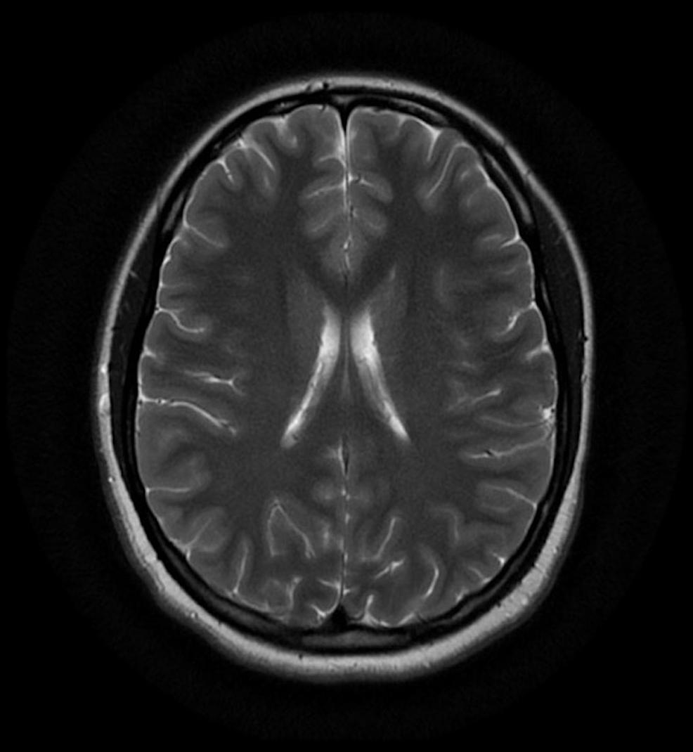 Normal-MRI-(axial-T2)-