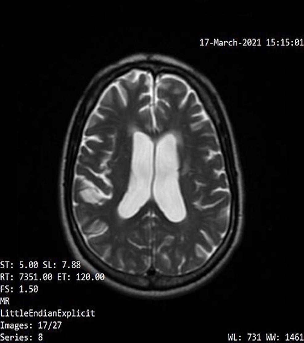 Patient-MRI-performed-on-March-17,-2021