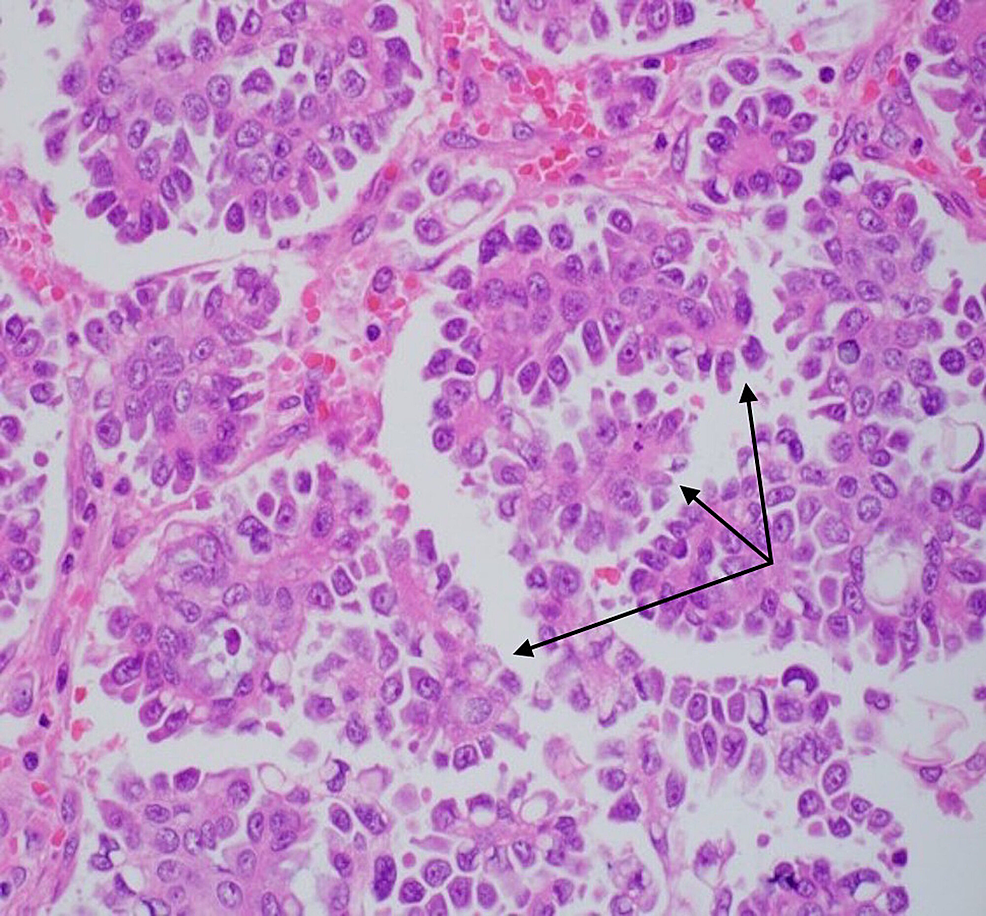 Specimen-histology-showing-papillary-structures-(black-arrows)-surrounding-fibrovascular-cores,-lined-by-high-grade-tumor-cells.