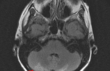 Article box 8d56d900b47211e7b6b0af082f524e1d magnetic resonance imaging  mri  of the brain without contrast showing focal cerebellar enhancement v2